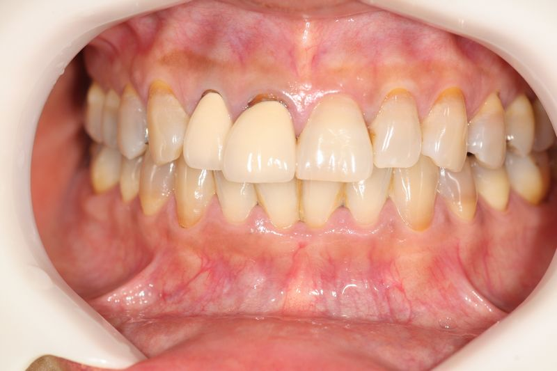 審美歯科術前