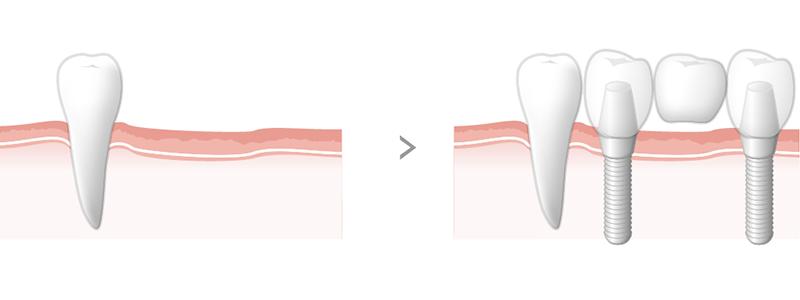 複数の歯を失った場合