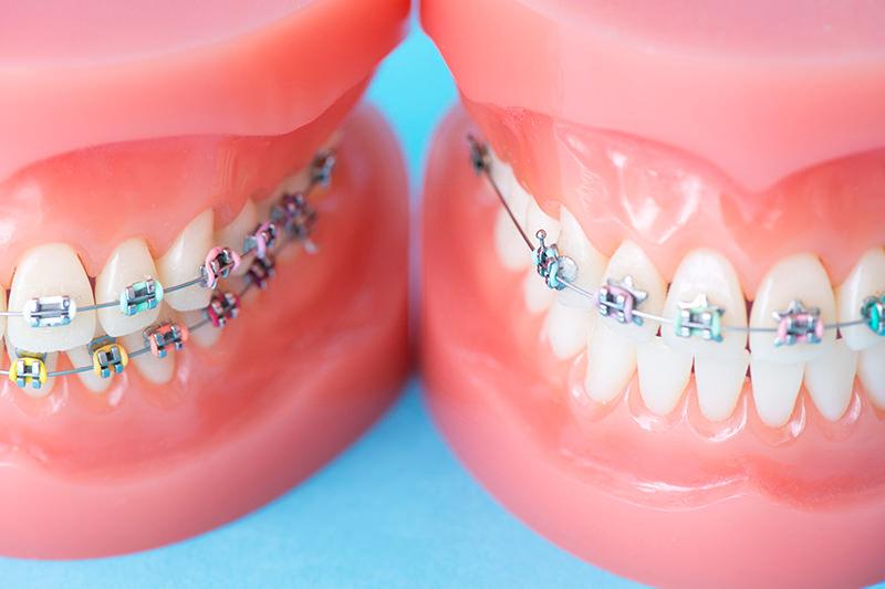 なぜ歯科矯正が必要なのでしょうか?